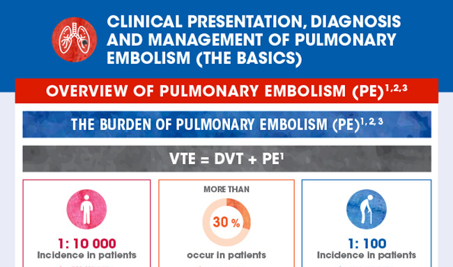Clinical presentation, diagnosis, and management of pulmonary embolism